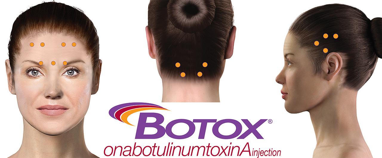 Aplicação de botox para enxaqueca