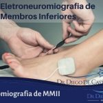 Eletromiografia de MMII