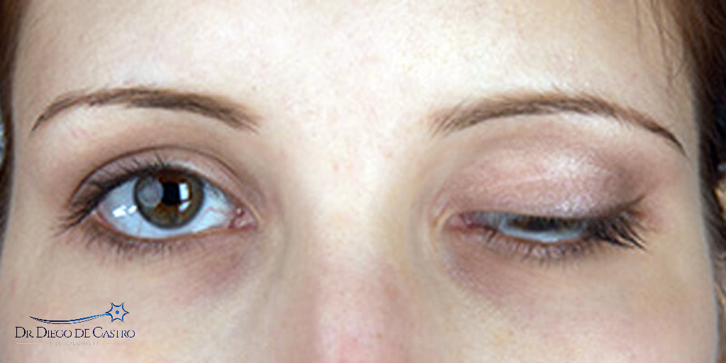 miastenia gravis ocular