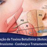 Botox para Bruxismo