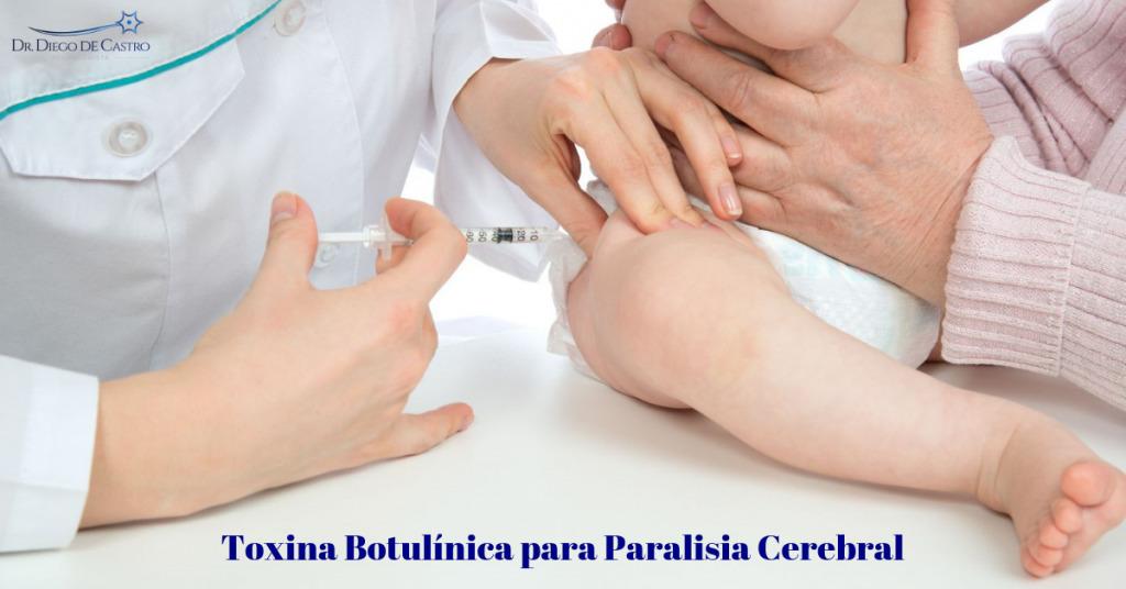 Botox para Paralisia Cerebral