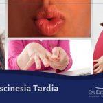 discinesia tardia